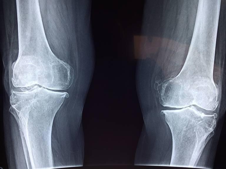 knee-2253047_1280.jpg